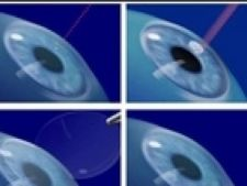 ochi laser