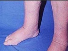 remediu casnic pentru picioarele inferioare umflate