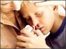 De ce ne curge sange din nas?